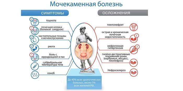 Симптомы и осложнения мочекаменной болезни