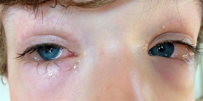 Слизистые выделения из глаз ребенка