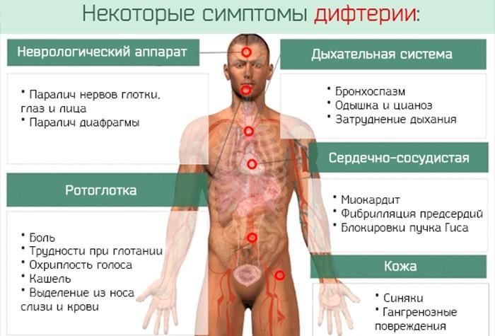 Симптоматика болезни