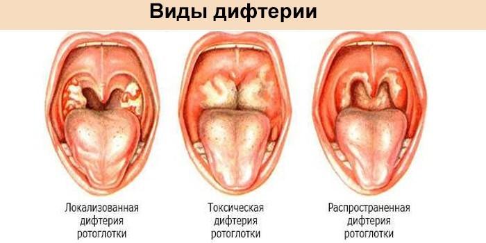 Виды дифтерии ротоглотки