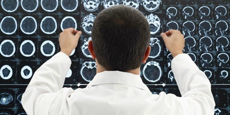 Врач исследует снимки головного мозга