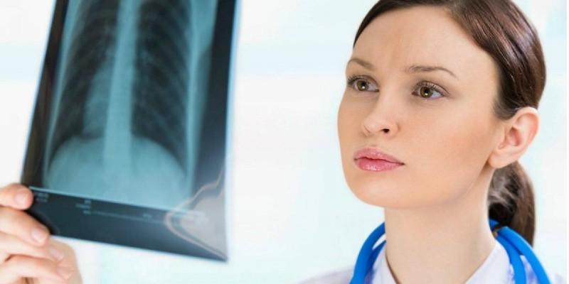 Пульмонолог со снимком легких в руке