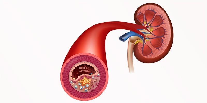Схема кровоснабжения почки