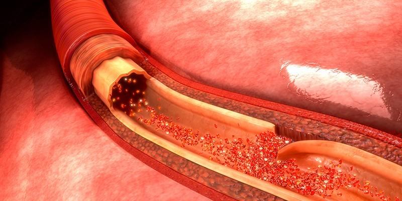 Повреждение кровеносных сосудов стенки кишечника