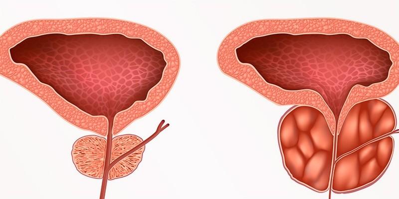 Здоровая предстательная железа и аденома простаты