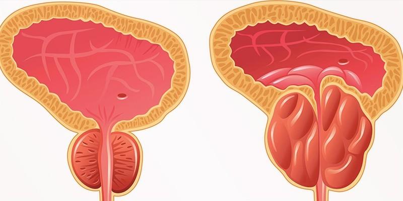 Здоровая и пораженная аденомой предстательная железа