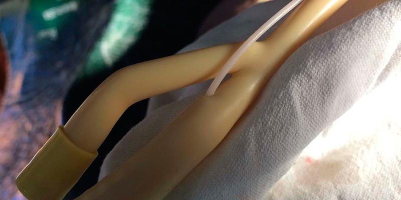 Катетеризация мочеточника