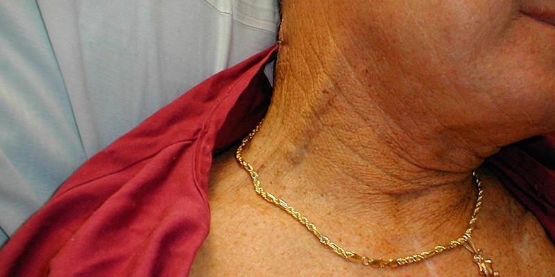 Увеличение вен на шее