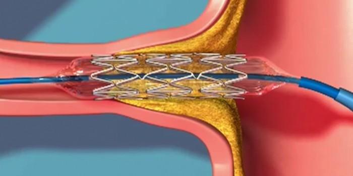 Баллонная дилатация и стентирование почечных артерий