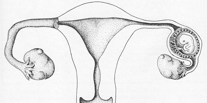Разновидности внематочной беременности