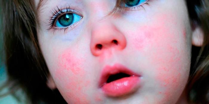 Сыпь возникает на щеках