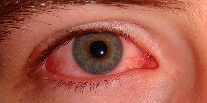 Покраснение склеры при конъюнктивите
