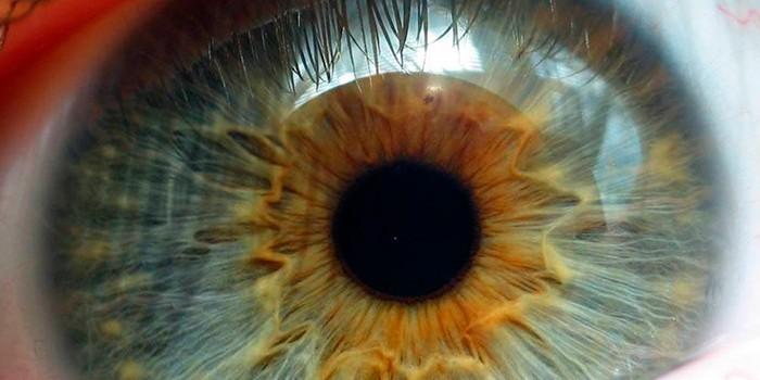 Изменение в глазу при дистрофии
