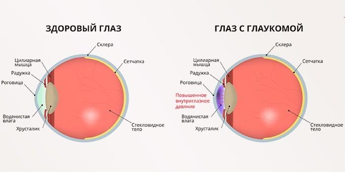Здоровый глаз и с глаукомой