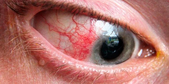Последствия контузии глаза