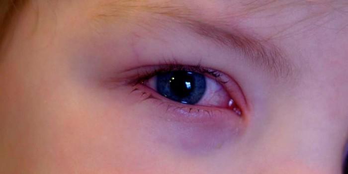 Покраснение под глазом у малыша