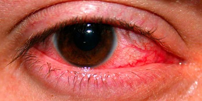 Красный слезящийся глаз