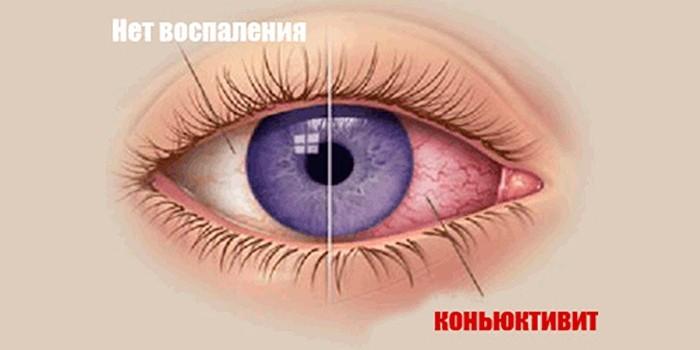Здоровый и пораженный конъюнктивитом глаз