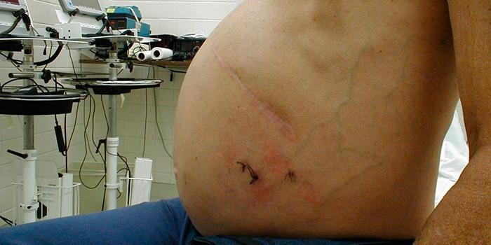Шрамы после операции