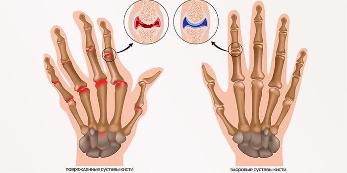 Кистевой артрит