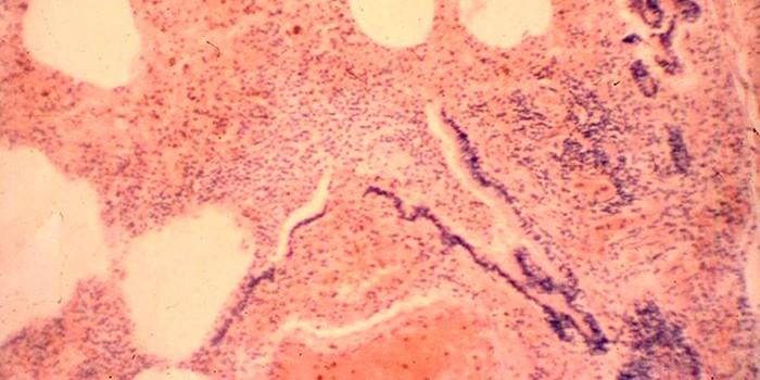 Геморрагическая пневмония