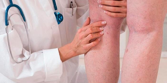 Медик осматривает ноги пациента
