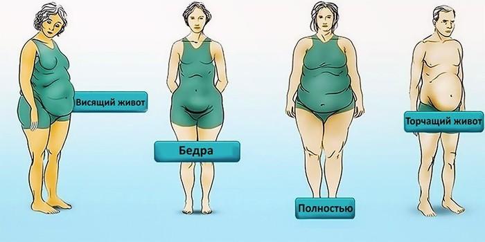 Основные типы ожирения