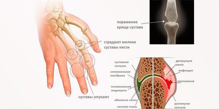 Поражения суставов при артрите