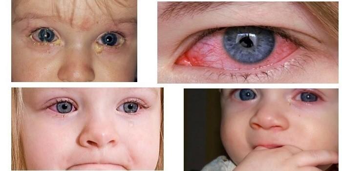Проявления острого конъюнктивита у детей