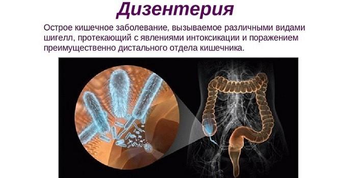 Дезинтерия