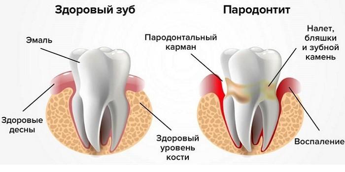 Здоровый зуб и пародонтит