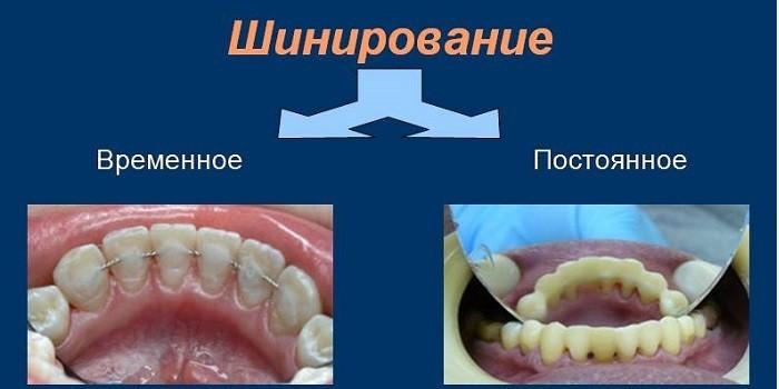 Временное и постоянное шинирование зубов