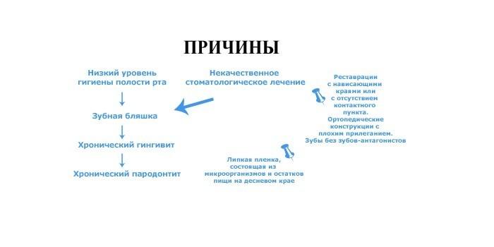 Причины пародонтита