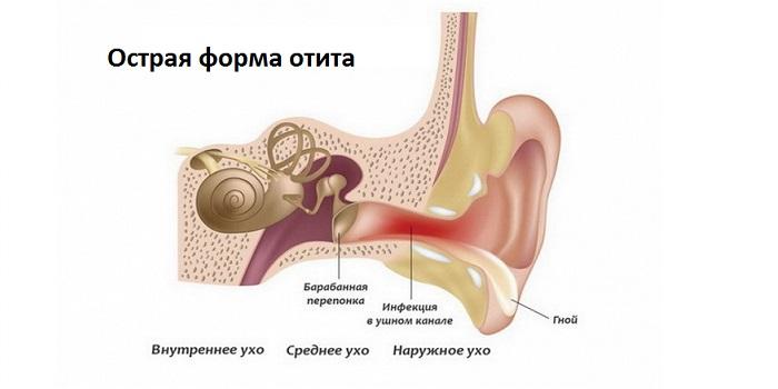 Острая форма заболевания