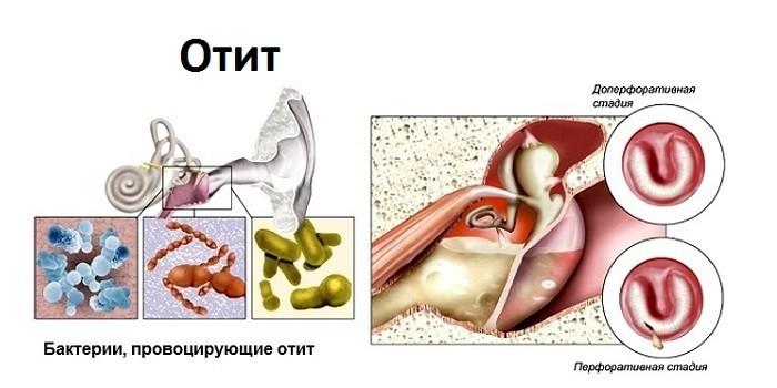 Провоцирующие бактерии и стадии отита