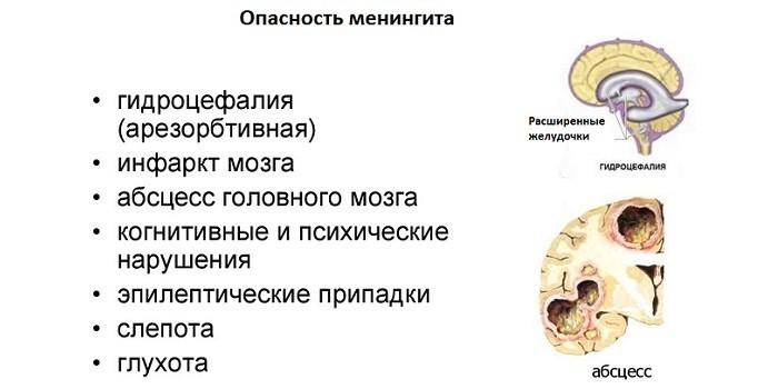 Опасность менингита для детей