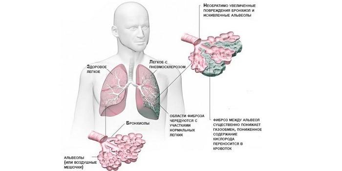 Признаки пневмосклероза легкого