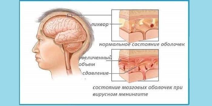 Цереброспинальный менингит