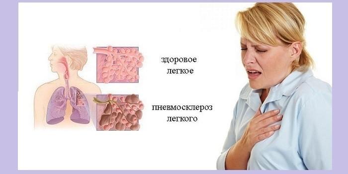 Симптомы пневмосклероза