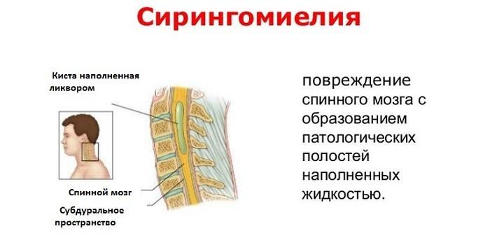 Сирингомиелия шейного отдела