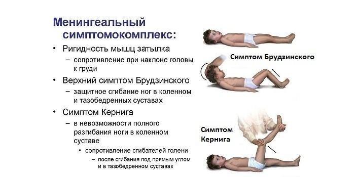 Менингиальный симптомокомплекс