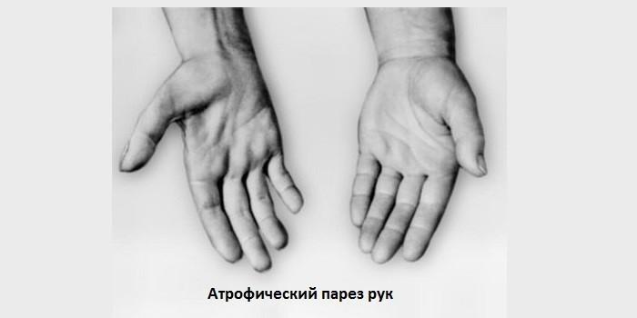 Атрофический парез рук