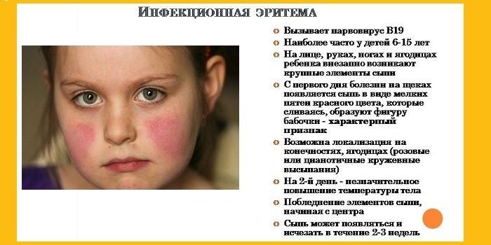 Инфекционная эритема