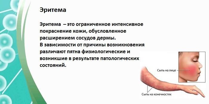 Что такое эритема