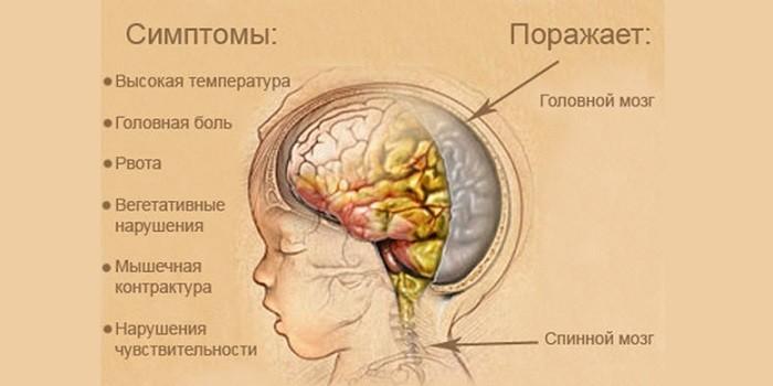 Симптомы и зоны поражения
