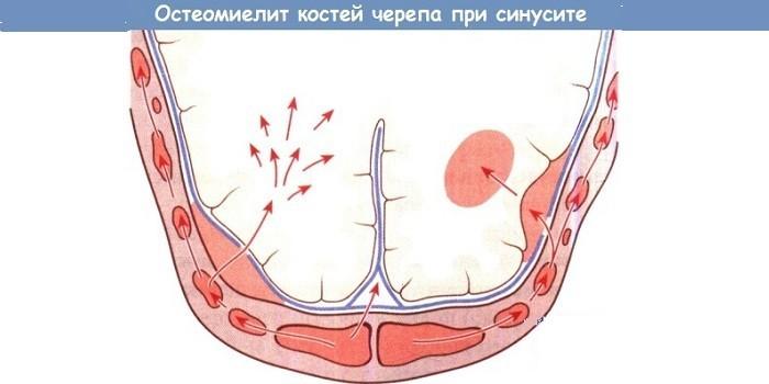 Остеомиелит черепных костей при синусите