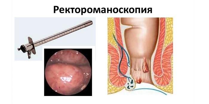 Схема проведения ректороманоскопии