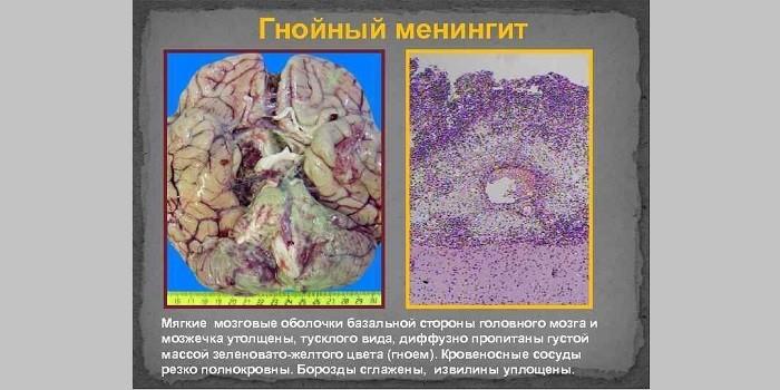 Что такое гнойный менингит
