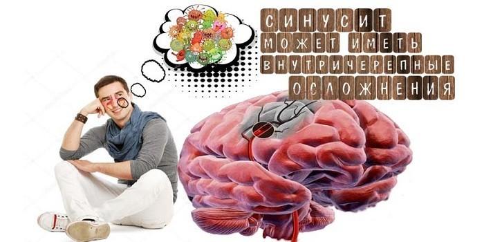 Внутричерепные осложнения синусита