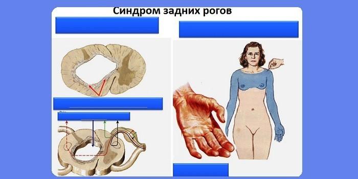 Синдром задних рогов